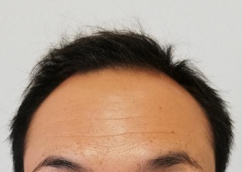 たつの市 男性型脱毛症 AGA 画像